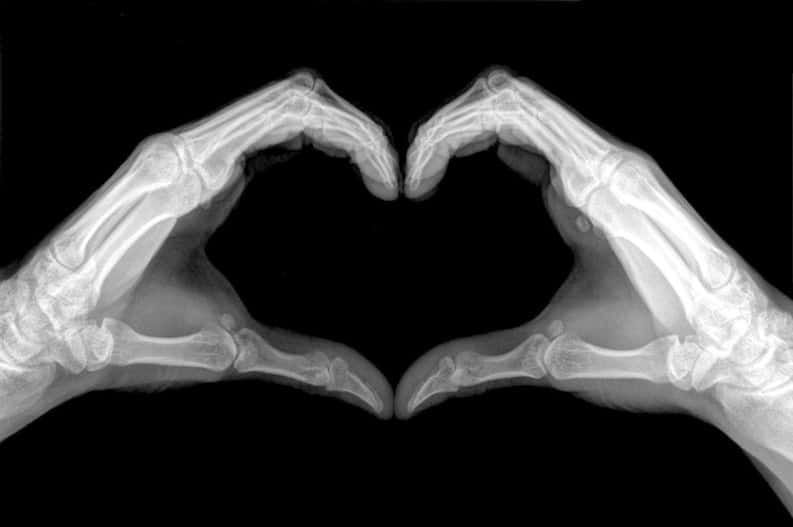 x ray of hands making heart shape