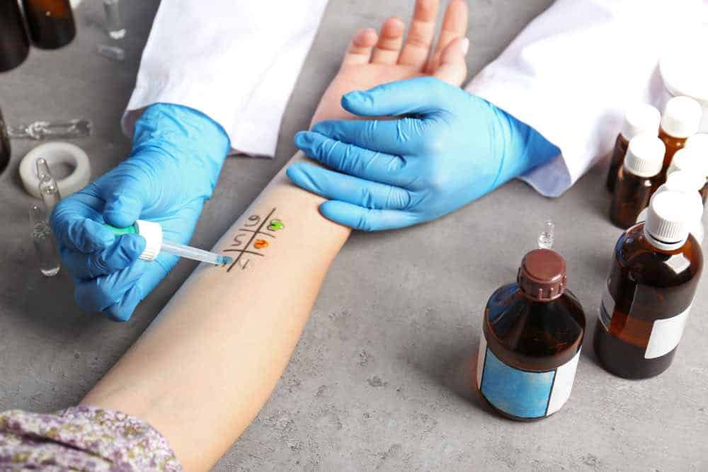 Doctor with blue surgical gloves on performing an allergy test on the skin of a patient's arm, numbered 1 to 6.