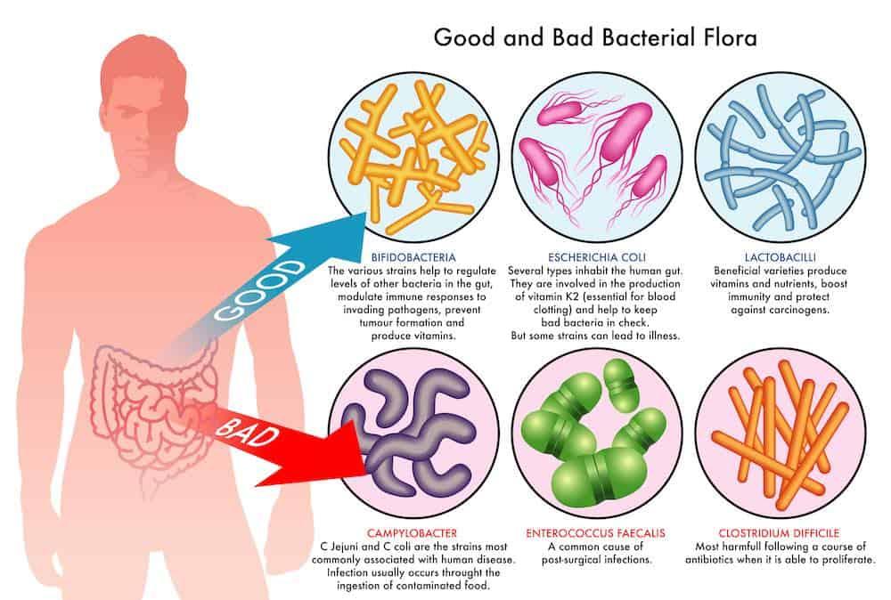 intestinal bacterial gut flora infographic