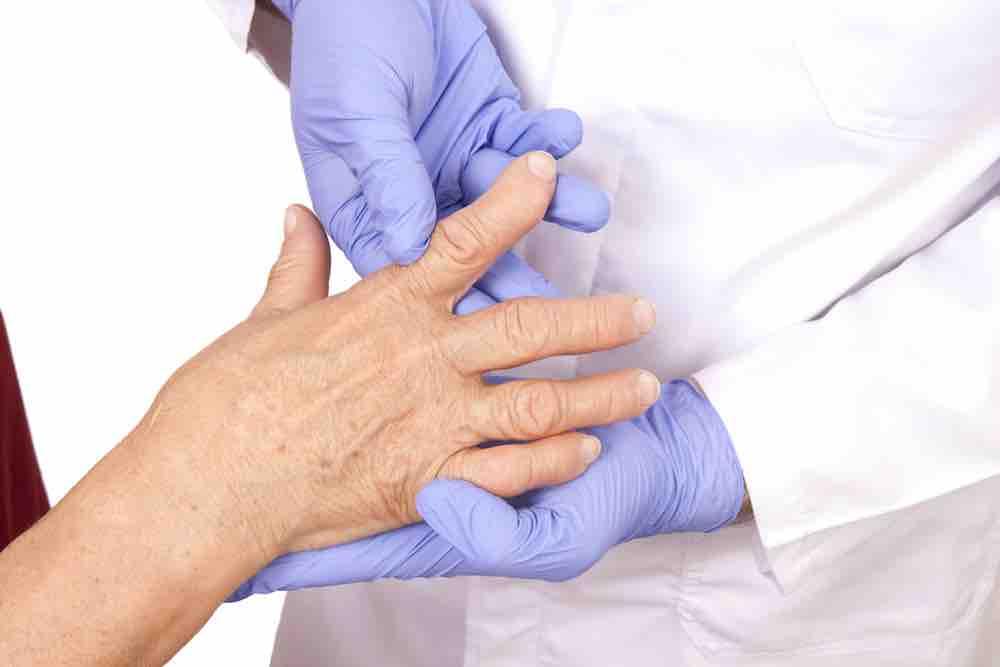 doctor examining woman's arthritic hands